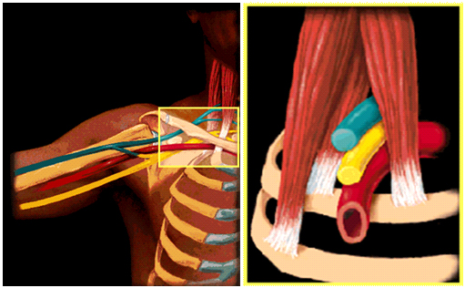 How To Truly Identify And Treat Thoracic Outlet Syndrome