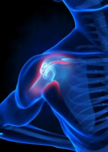 Fixing Shoulder Pain Through Improved Scapular Stability