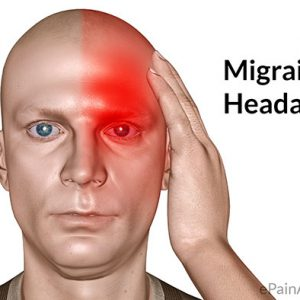Resolve Migraine Headaches By Addressing The Atlas And Thoracic Outlet