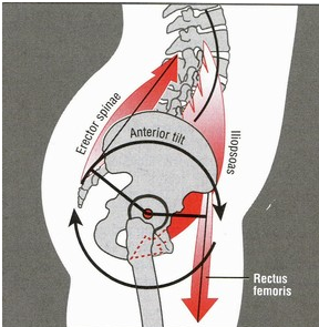 How To Really Assess Lumbar Lordosis – Dispelling The Myth Of Anterior Pelvic Tilt